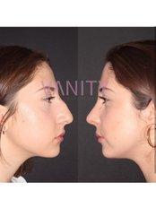 Nasenkorrektur - Vanity Plastische Chirurgie Klinik