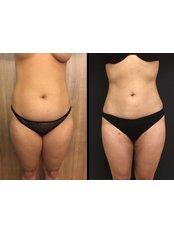 Liposuction - Vanity Cosmetic Surgery Hospital İstanbul