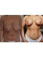 Breast Reduction - Vanity Cosmetic Surgery Hospital İstanbul