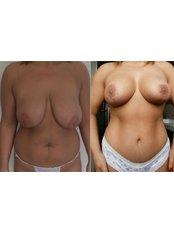 Brustverkleinerung - Vanity Plastische Chirurgie Klinik
