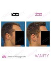 DHI - Direct Hair Implantation - Vanity Plastische Chirurgie Klinik