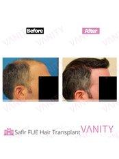 Haartransplantation - Vanity Plastische Chirurgie Klinik