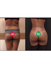 Po-Straffung  - Vanity Plastische Chirurgie Klinik