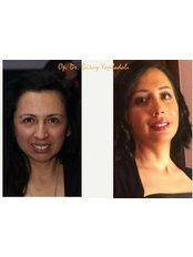 Facelift - Vanity Cosmetic Surgery Hospital İstanbul
