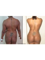 Butt Lift - Vanity Cosmetic Surgery Hospital İstanbul