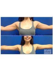 Arm Liposuction - Vanity Cosmetic Surgery Hospital İstanbul