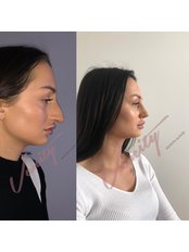 Closed Rhinoplasty - Vanity Cosmetic Surgery Hospital İstanbul