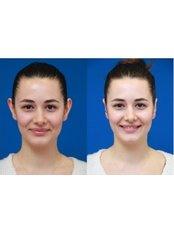 Otoplasty - Vanity Cosmetic Surgery Hospital İstanbul