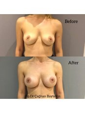 Breast Augmentation - Clinic Baytekin International