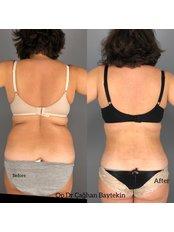 Liposuction - Clinic Baytekin International