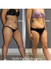 Tummy Tuck - Clinic Baytekin International