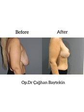 Breast Reduction - Clinic Baytekin International