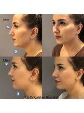 Open Rhinoplasty - Clinic Baytekin International