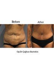 Full Abdominoplasty - Clinic Baytekin International