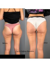 Body-Jet™ Liposuction - Clinic Baytekin International