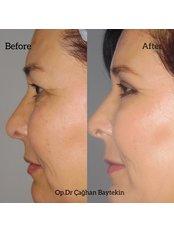 Blepharoplasty - Clinic Baytekin International