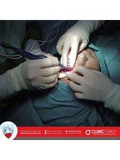 Blepharoplasty (Eyelid surgery) - ClinicTurkey