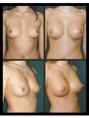 Breast Implants - International Medical Care
