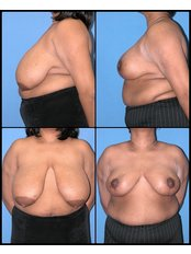 Breast Reduction - International Medical Care