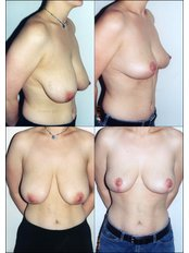 Breast Lift - International Medical Care