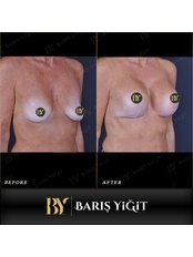 Breast Implants - Baris Yigit Aesthetic & Plastic Surgery Clinic