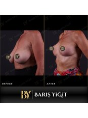 Breast Reduction - Baris Yigit Aesthetic & Plastic Surgery Clinic