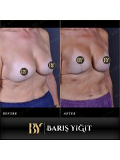 Breast Implant Revision - Baris Yigit Aesthetic & Plastic Surgery Clinic