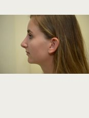 Bristol Cosmetic Surgery - Chesterfield Nuffield Hospital - Post op rhinoplasty nice gentle curve profile