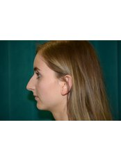 Rhinoplasty - Bristol Cosmetic Surgery - Chesterfield Nuffield Hospital