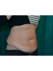 Tummy Tuck - Bristol Cosmetic Surgery - Chesterfield Nuffield Hospital