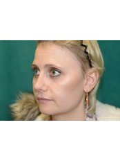 Open Rhinoplasty - Bristol Cosmetic Surgery - Chesterfield Nuffield Hospital