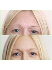 Treatment for Lines and Wrinkles - Botonics - Battersea