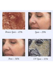 Medical Aesthetics Specialist Consultation - Zenith Cosmetic Clinic - London