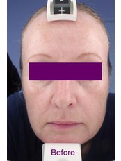 Fractional CO2 Laser Treatment - Zenith Cosmetic Clinic - London
