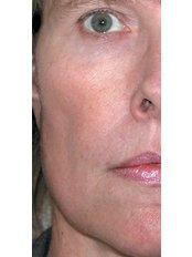 Rosacea Treatment - Zenith Cosmetic Clinic - London
