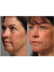 Non-Surgical Facelift - Zenith Cosmetic Clinic - London