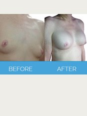 Vaser Clinic - Liverpool - Breast Implants Before & After