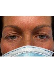 Eyelid Surgery - Kenneth Kok Plastic Surgeon