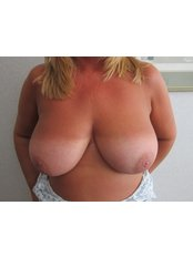 Breast Reduction - Staiano Plastic Surgery