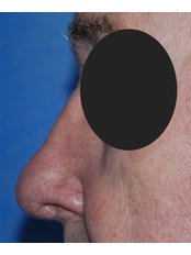 Open Rhinoplasty - Harley Plastic Surgery