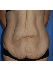 Post Bariatric Plastic Surgery - Harley Plastic Surgery