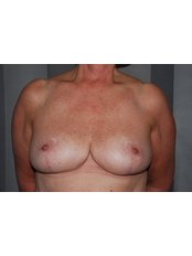 Breast Reduction - Harley Plastic Surgery