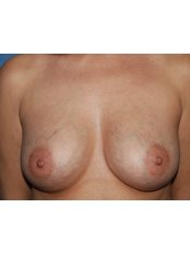 Breast Implants - Harley Plastic Surgery