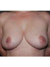 Breast Lift - Harley Plastic Surgery