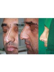 Open Rhinoplasty - Prof Dr Ashok Govila