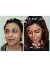 Nasal Tip Surgery - Prof Dr Ashok Govila