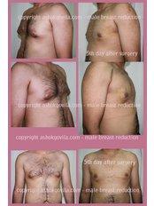 Gynecomastia - Prof Dr Ashok Govila