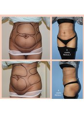 Tumescent Liposuction - Prof Dr Ashok Govila