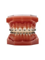 Fixed Braces - Orthodontic Clinic