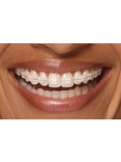 Clear Braces - Orthodontic Clinic